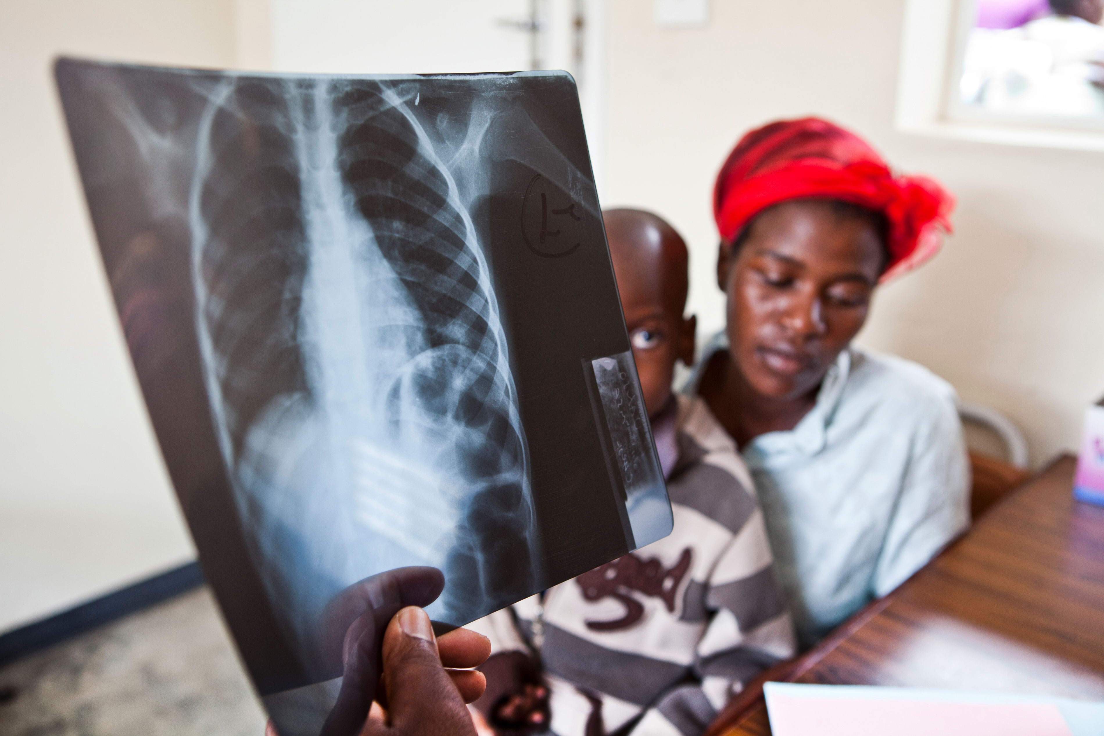 Primrose and her child Panashe as doctors confirm the seven-year-old boy is suffering from TB.