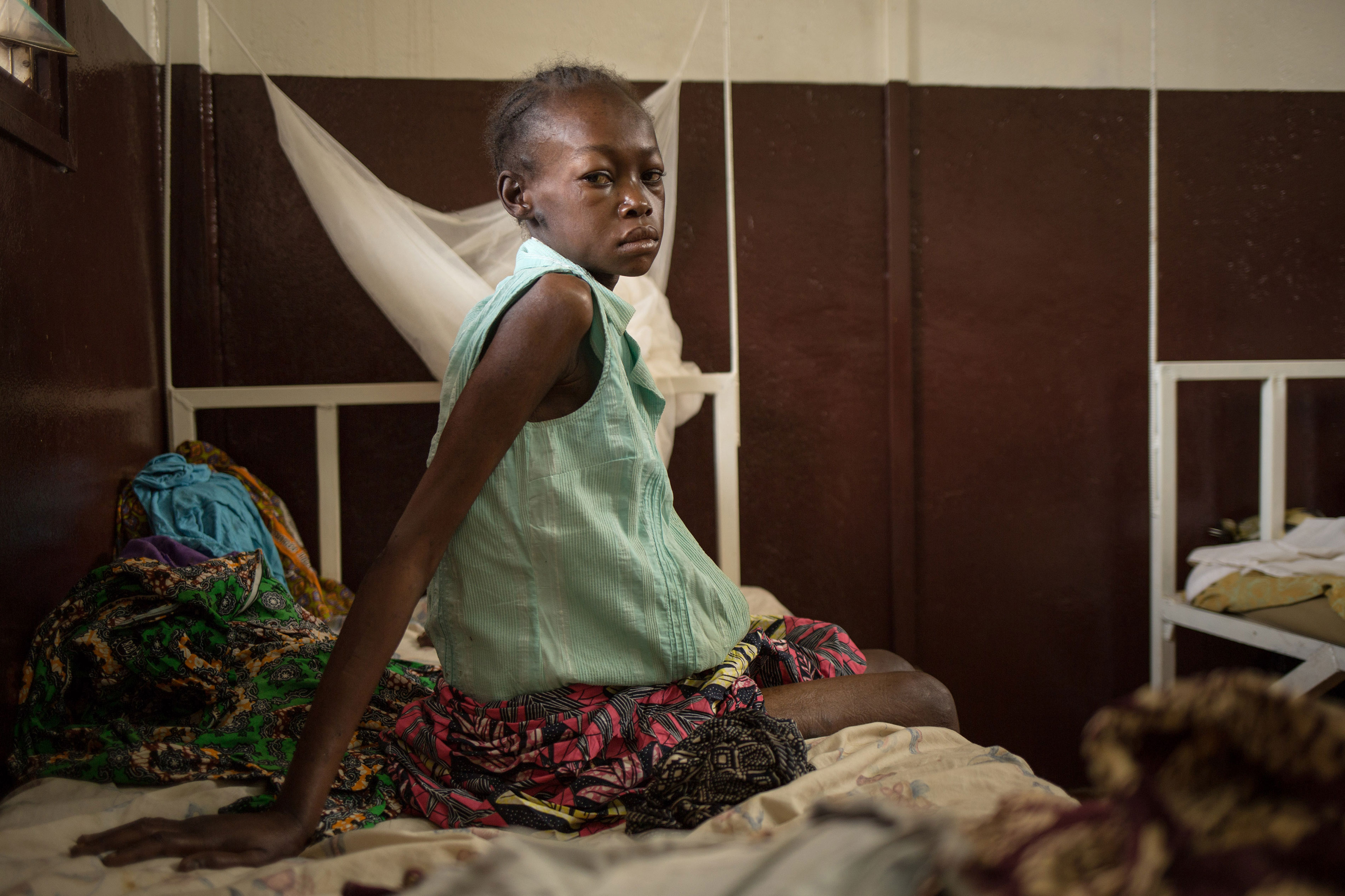 """I don't have money for medical treatment so I did not seek help for a long time."" Cynthia DOUNKEL, 26 years old, is hospitalized for the second time within a month in Hôpital communautaire in Bangui. She was referred from the MSF clinic in the displaced camp Mpoko at the airport of Bangui. She is HIV positive, has Tuberculosis and suffers from Kaposi's sarcoma. She is three months pregnant. 09 July 2016 - Hôpital communautaire, Bangui, Central African Republic. Photograph by Alexis Huguet"