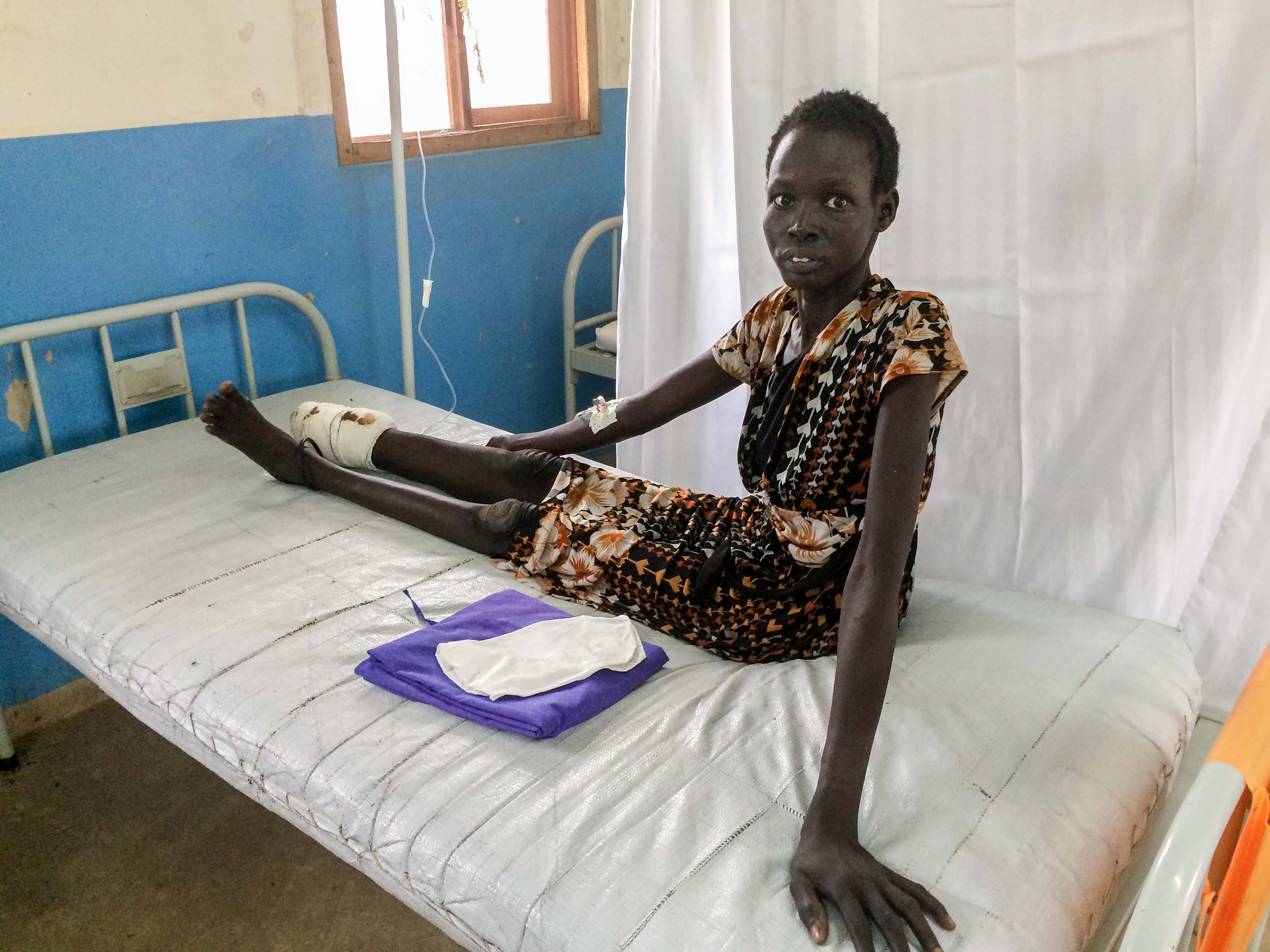Nyekuony, 35, lost her foot and lower leg due to a snakebite that was not treated on time. She is awaiting surgery at the MSF hospital in Agok. Photograph by Alexandra Malm