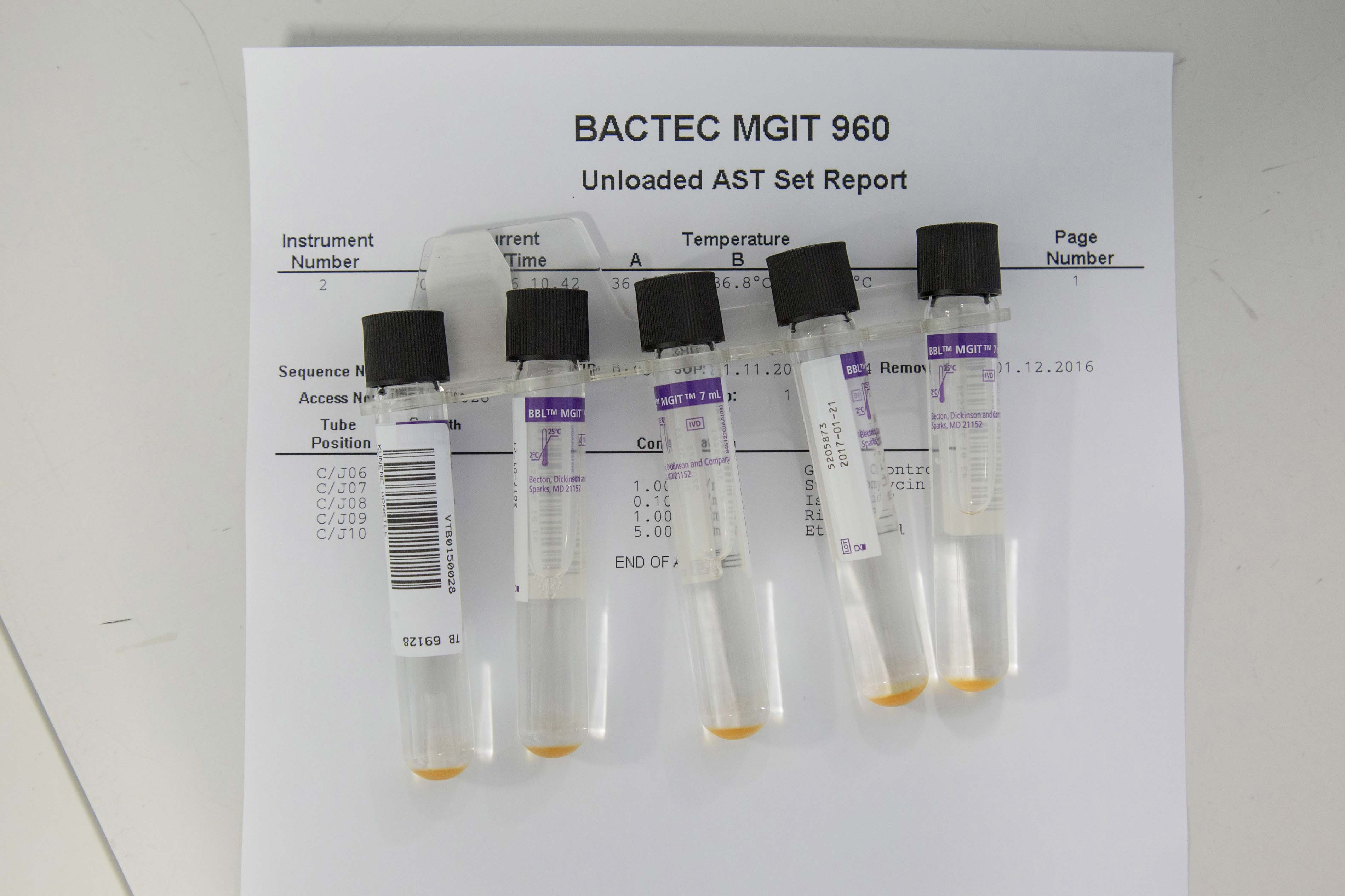 Bacteria culture tubes for BACTEC™ MGIT™ 960 Mycobacterial detection system in the National TB Reference Laboratory. This device helps growing and detecting TB bacteria and determining drug resistances. Government Hospital, Mbabane, Swaziland. Photograph by Alexis Huguet