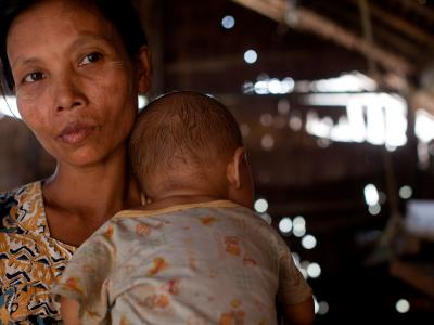 Ma Htwe Myint, 38, holds her 16 month old baby Thar Nge. He is co-infected with HIV and TB.