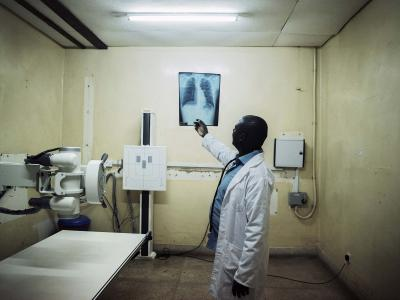 Malawi. June 30, 2017. Patrick Chipungu, 51 years, an MSF clinician looks at Simbazako Thove's X-Ray. Simbazako is 19 years and HIV and TB positive.